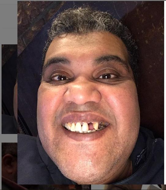 احمد فتحي ينشر صورته بعد خلع سنته