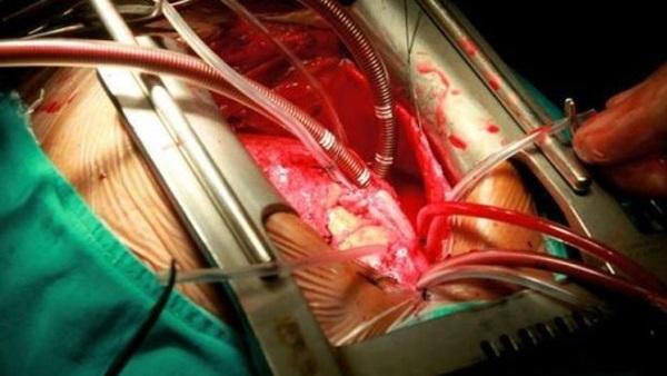 البوابة نيوز القلب المفتوح ضرورة لإنقاذ الحياة