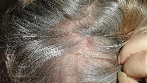 البوابة نيوز تعرفي على حبوب الشعر وسبب ظهورها والتخلص منها