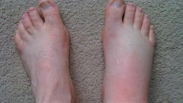 البوابة نيوز أسباب ظهور حبوب القدمين وطرق العلاج
